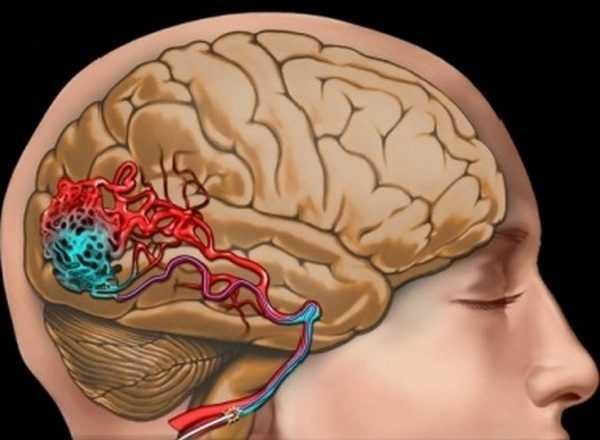 Image result for тархины судасны нарийсал