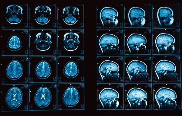 Блуждающий нерв лечение народными средствами