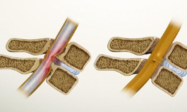 Prostatitis hagyma fokhagyma torma