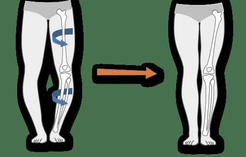 tratamentul articulației false congenitale a piciorului inferior