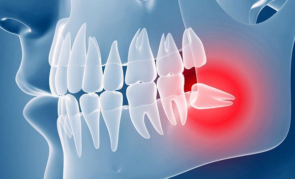 Нужно ли обязательно удалять зубы мудрости или лучше попробовать их лечить