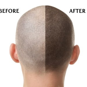 scalp-before-after