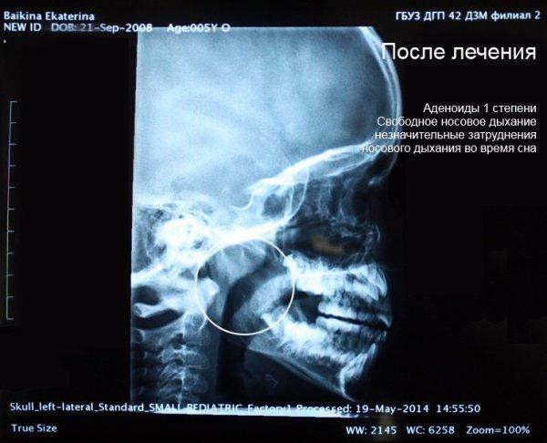 Рентген после лечения аденоидов