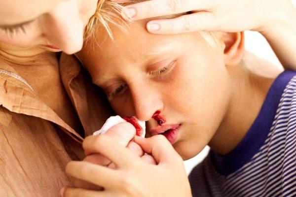 Носовое кровотечение после удаления