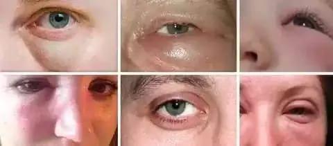 Этмоидит симптомы и лечение у взрослых про