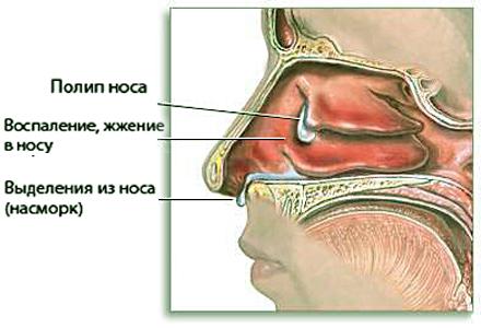 Полип в носу - в разрезе