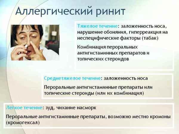 Аллергический ринит -симптомы