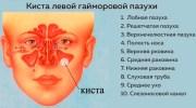 Чем опасна киста в носовой пазухе – виды и диагностика