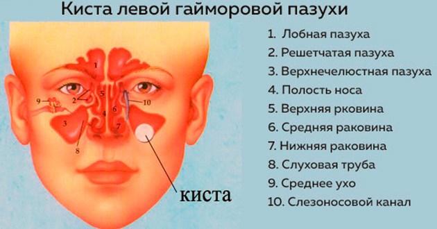 Чем опасна киста в носовой пазухе — виды и диагностика