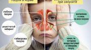 Причины синусита, симптомы и лечение у детей в домашних условиях