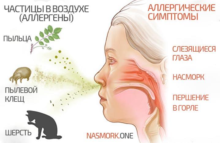 Как узнать аллергический ринит или нет thumbnail