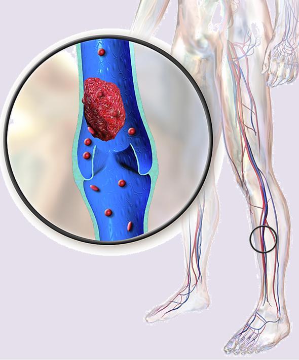 Гепарин — низкомолекулярный антикоагулянт прямого действия. Гепарин уколы