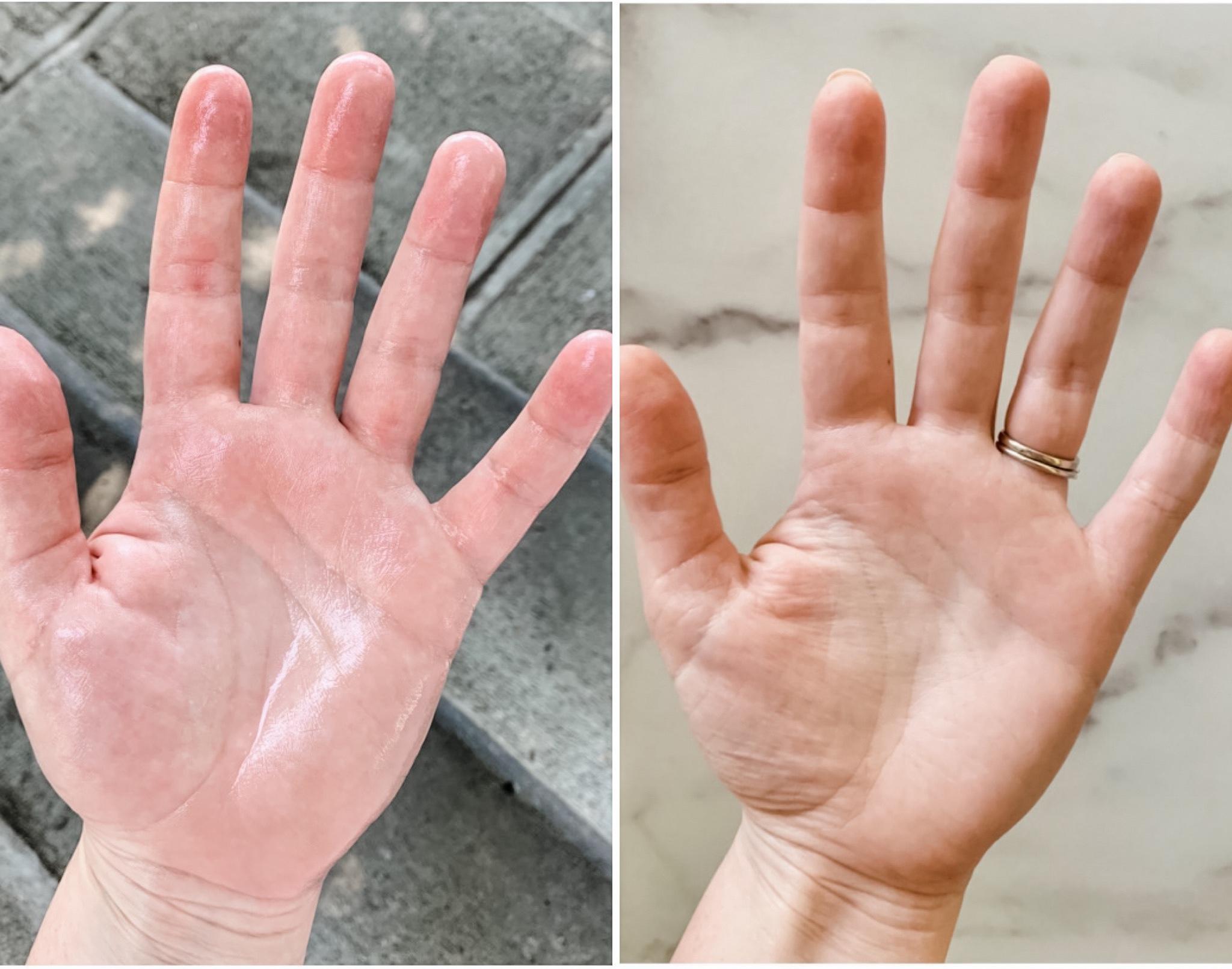Hyperhidrosis vs normal hand