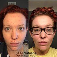 Cool Peel Facial treatment result