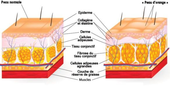 cellulite modere trim