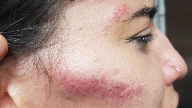 Jovem denuncia agressão a pauladas e pedradas na Tijuca
