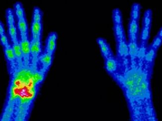 nuclear radioisotopes are used in medical diagnostics and imaging