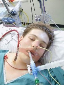 Vaping Teen Almost Died From Severe Lung Failure In UK