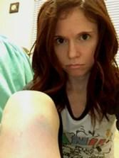 bruised knee2