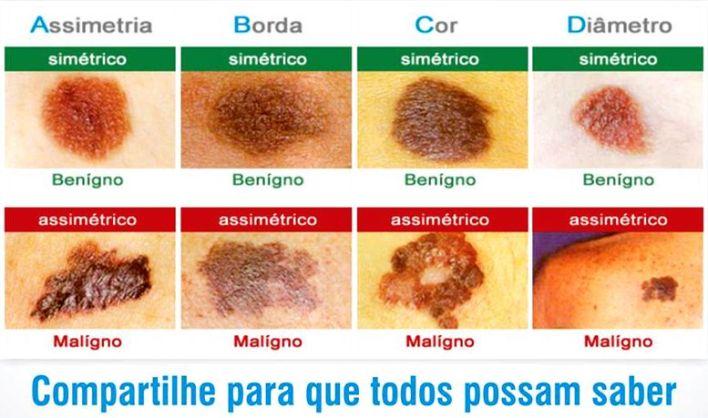 cancer-pele