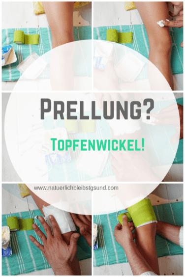 Prellung_