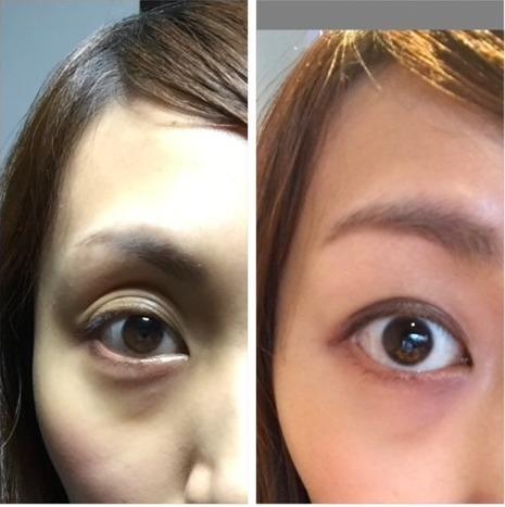 目のくぼみ 原因