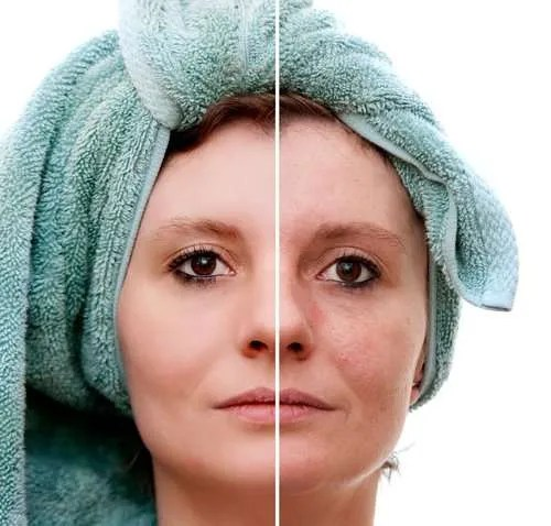 How To Shrink Your Pores On Nose And Face