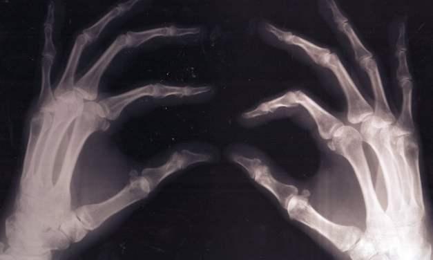 La vitamina K fortalece los huesos mejor que el calcio