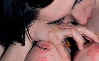 tratamiento-natural-psoriasis