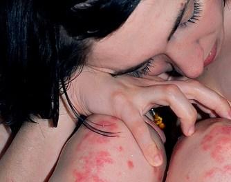 Tratamiento Natural Contra la Psoriasis