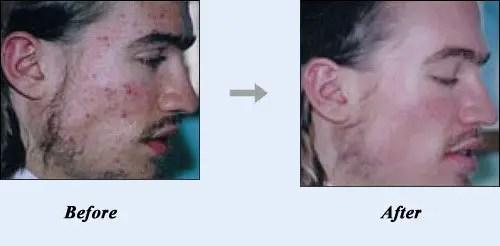 BEST Pimple Treatment