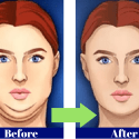 Home remedies for double chin