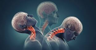 Treatment for neck pain the alternative approach