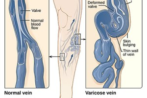 What are Varicose Veins? 3