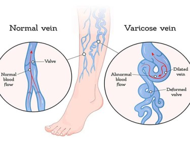 illustration showing a normal vein and varicose veins