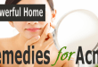 3 Powerful Home Remedies for Acne