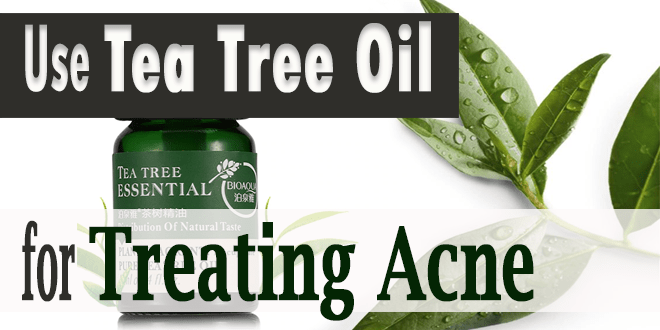 Use-Tea-Tree-Oil-for-treating-Acne