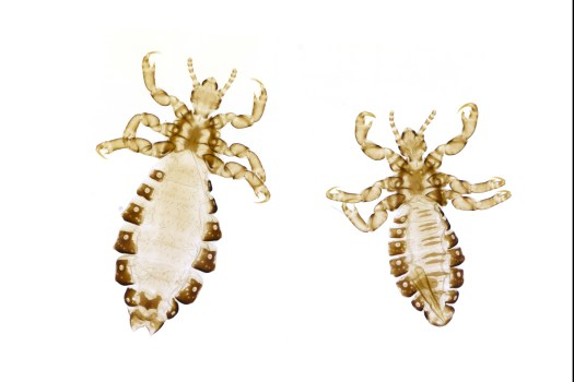 A high resolution image showing two human lice (Pediculus humanus capitis) in detail.