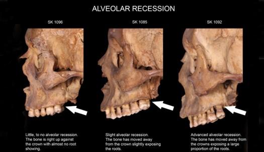 Examples of alveolar recession