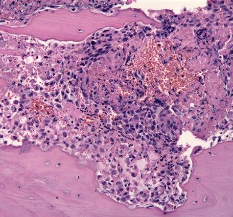 Matastatis of prostate cancer in vertebral bone