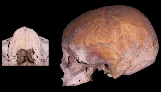 Adult from the post medieval burial ground