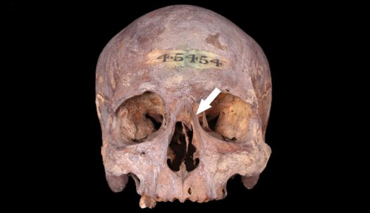 Adult male skull with a healed nasal fracture