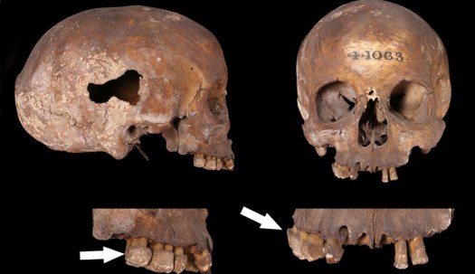 Roman adult dental decay