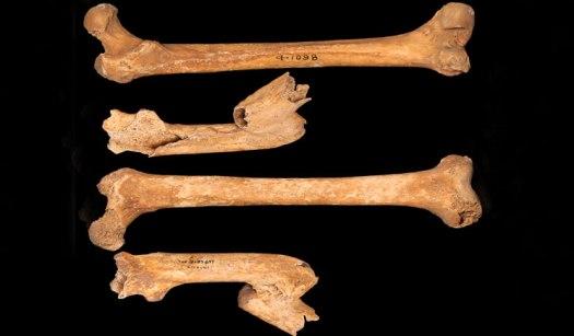 Fracture of the left femur