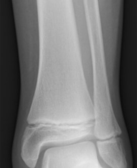 Childs tibia and fibula