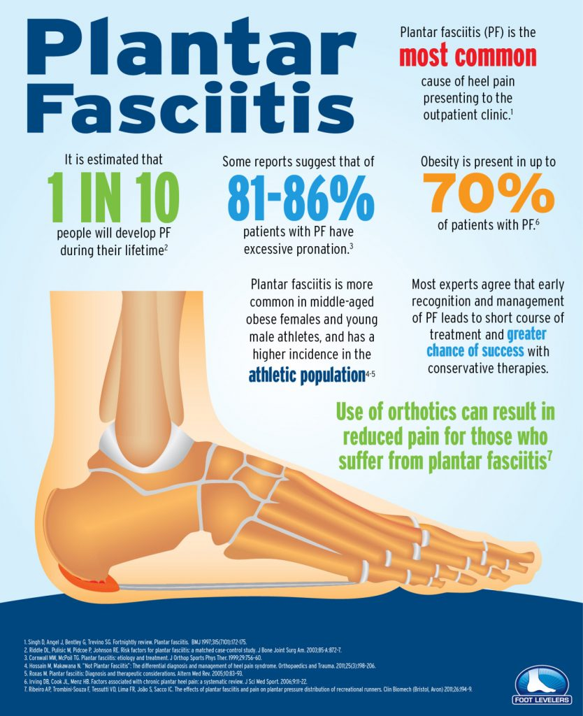 About Plantar Fascitis (infographic) 9