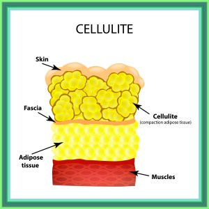 naturallyyoufl.com Cellulite Art SS