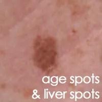 Age Spots and Liver Spots | Ag3derm