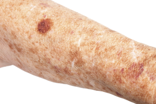 What are age spots? | How It Works Magazine