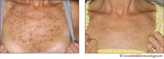 Get Rid of Freckles, Actinic Lentigo Treatment